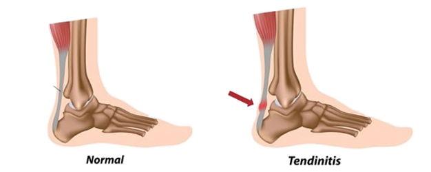 achilles-tendon-probems